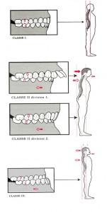 occlusion et posture