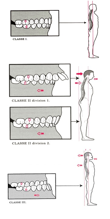 occlusion classes